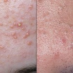 how to remove blackheads and whiteheads