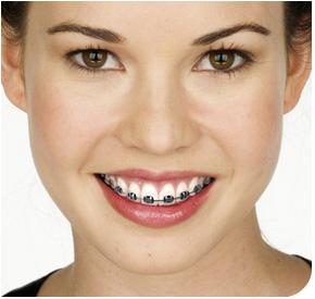 how much do braces cost only for the top teeth