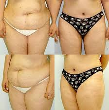 Abdominoplasty Tummy Tuck Cost