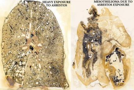 mesothelioma cancer lungs
