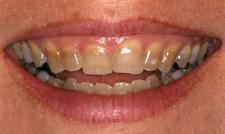 remove teeth stains