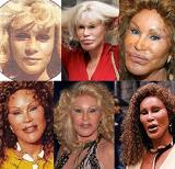 jocelyn wildenstein - Before and After Pictures