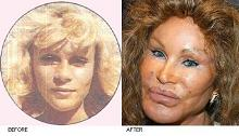 Jocelyn Wildenstein - Before and After Plastic Surgery