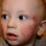 Baby's Rashes on Face photo 3