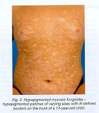 Home Remedies for Hypopigmentation