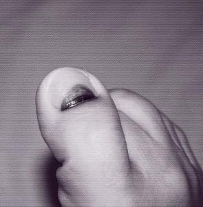 treat dead nail