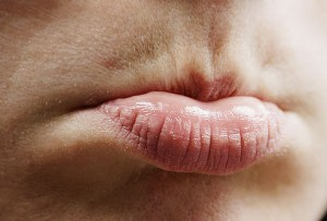 » Home remedies for Lips Discoloration