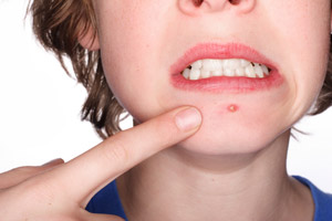 zits overnight home remedies
