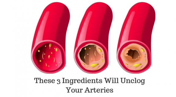 These 3 Ingredients Will Unclog Your Arteries